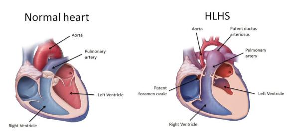 Normalno i HLHS srce